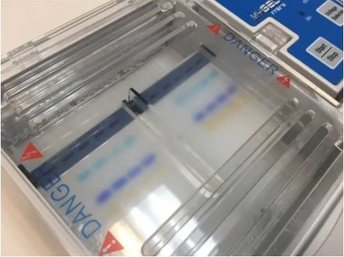 Gel Electrophoresis Stain: What to Use?